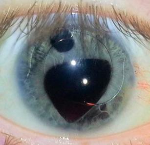 Несколько зрачков в глазу