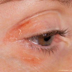 Шелушиться кожа вокруг глаза