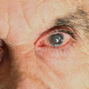 Глаукома глаза