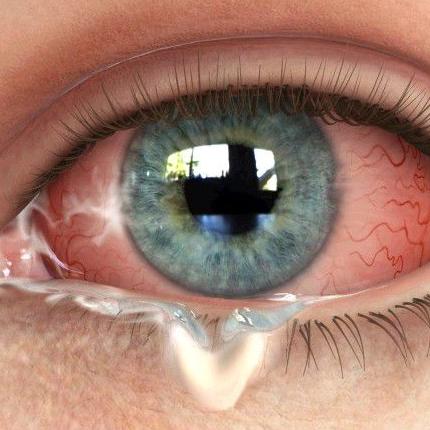 Гной из глаза