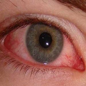 Конъюнктивит: красные глаза