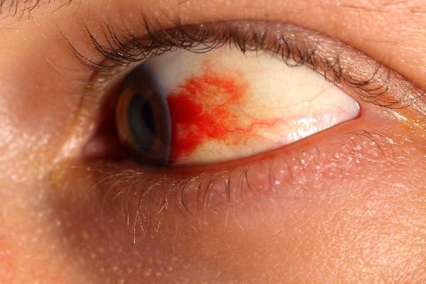 Красные пятна в глазах