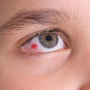 Красные пятна в глазах у детей