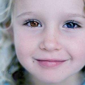 Гетерохромия у людей разный цвет глаз