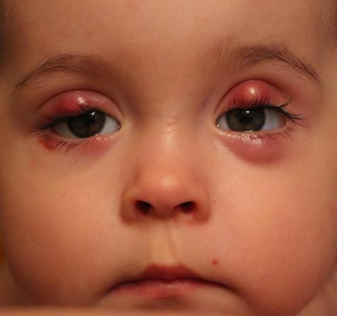 Воспаленные веки у ребенка