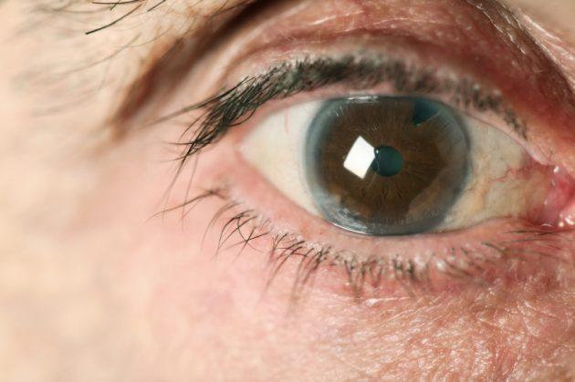 Фото хирургия глаукомы