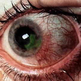 Раздраженный глаз