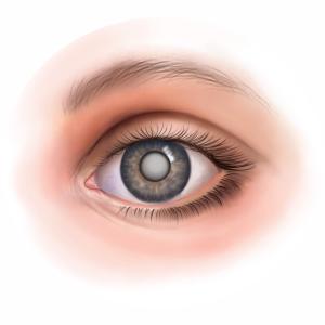 Мутный глаз