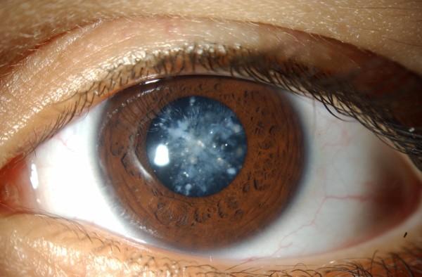 Стоимость операции по удалению катаракты