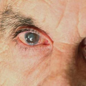 Глаз человека с катарактой