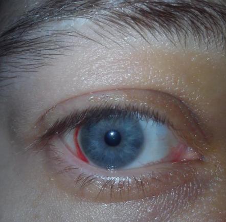 Кровь в глазу