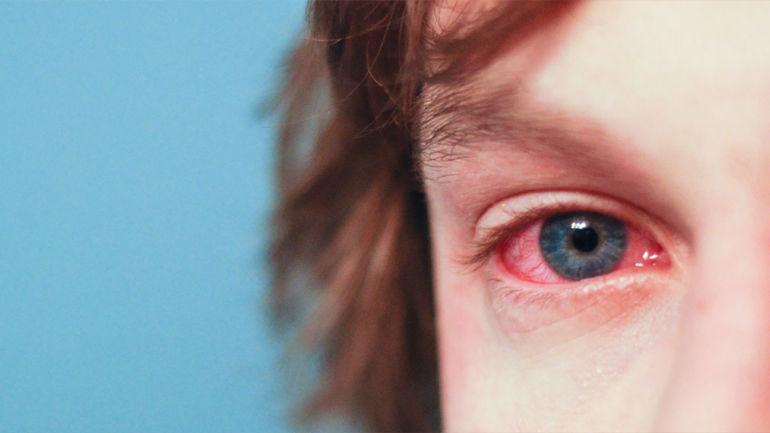 Красный глаз при коньюктивите