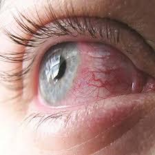 Больной глаз у девушки