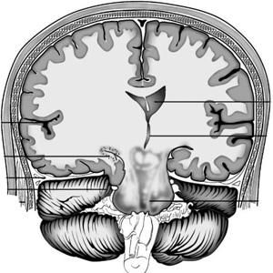 Дислокация головного мозга на снимке