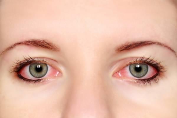 Глаза с коньюктивитом