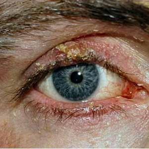 Глазной дексоментоз