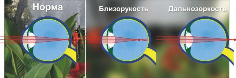 Картинка глаз