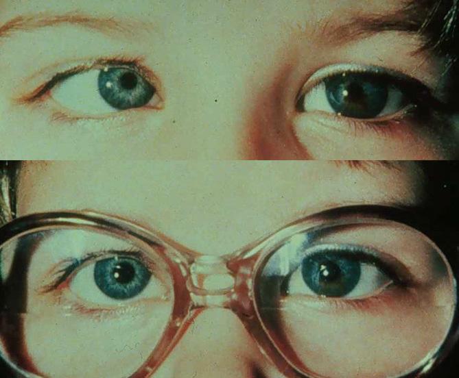 Косой ребенок в очках и без них
