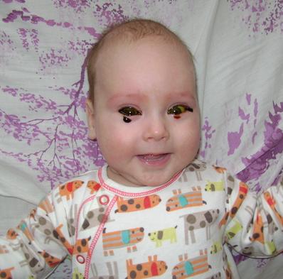 Раствор колларгола закапали в глаза ребенку