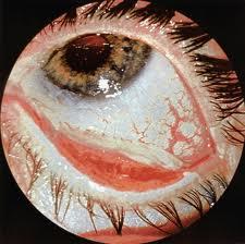 Средняя степень ожога глаза