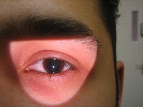 Глаз и зрачок при синдроме Эдди-Холмса