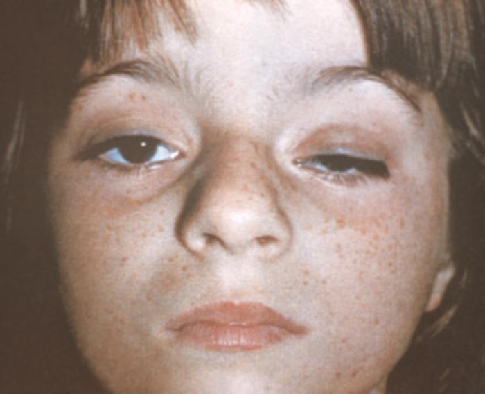 Ребенок с синдромом опущенного века