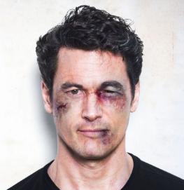 Травма глаза у мужчины