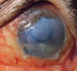 Третья степень ожога глаза