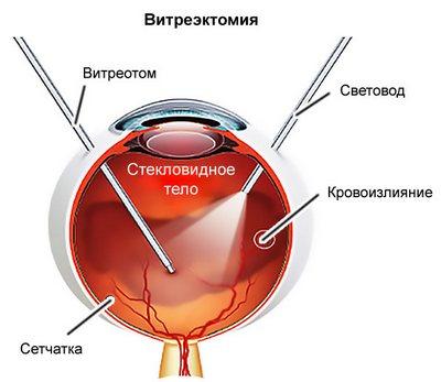 Витрэктомия операция