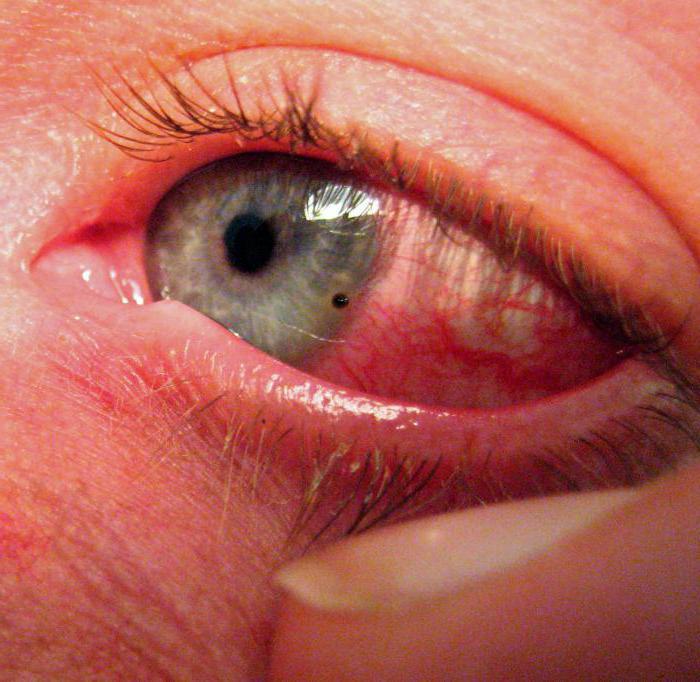 Ожог глаза легкой степени
