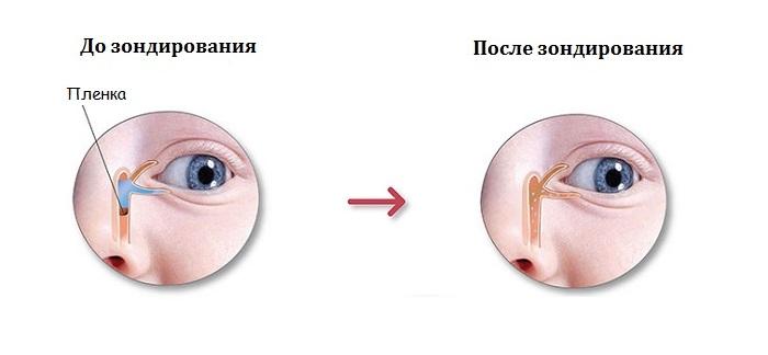 До и после зондирования слезного канала