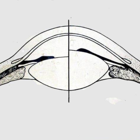 Глаз при аккомодации