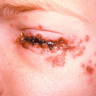 Хламидийная инфекция глаза