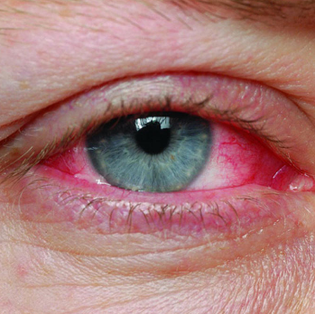 Красный глаз при конъюктивите