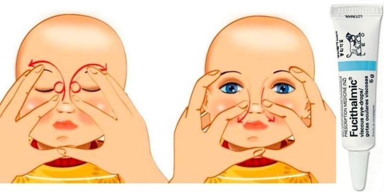 Схема массажа слезного канала у ребенка