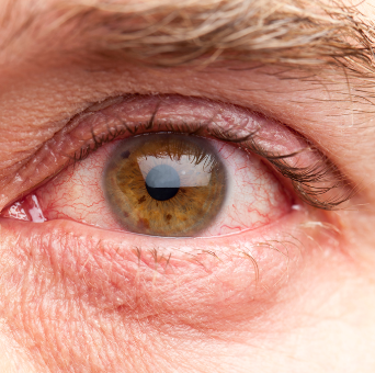 Красный сухой глаз