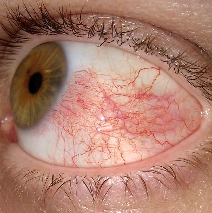 Сосуды глазного яблока