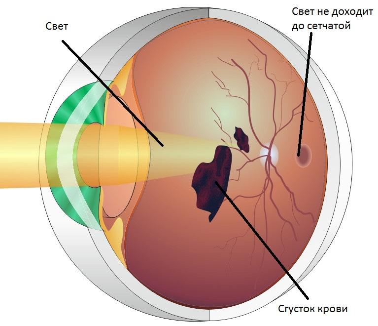 Сгусток крови в глазу при ретинопатии