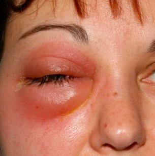 Абсцесс глаза