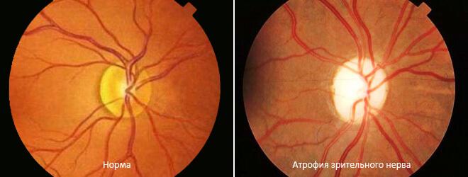 Зрительный нерв в норме и при атрофии