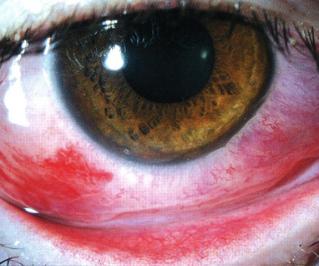 Геморрагический конъюнктивит