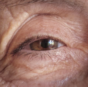 Глаз старого человека