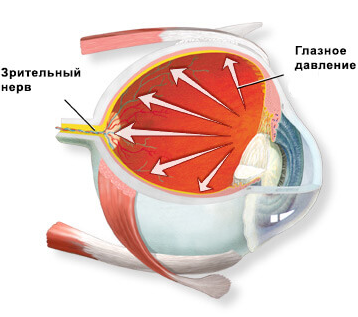 Изображение глазного давления