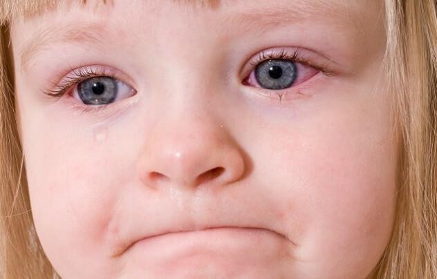 У девочки красные глаза