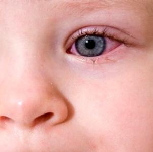 У ребенка красный глаз