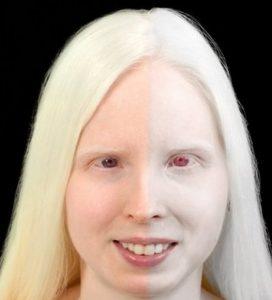 Красноватые глаза у девушки альбиноса