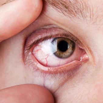 Раздраженный красный глаз