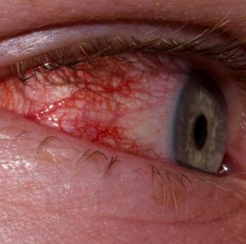 Красные капилляры в глазу