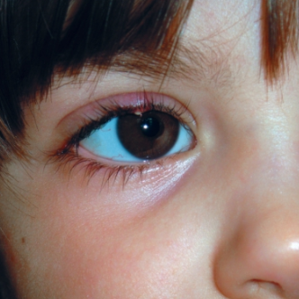 Красный глаз у ребенка