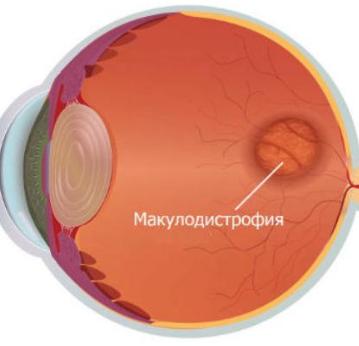 Макулодистрофия глаза